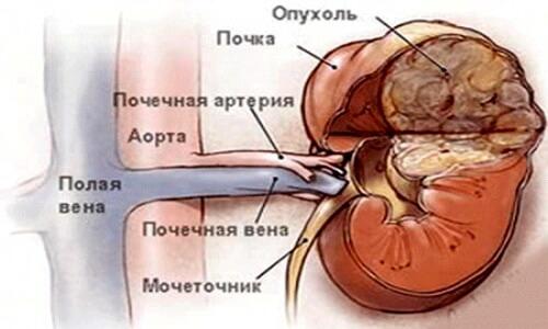 Ангиомиолипома почки. Что такое ангиомиолипома?