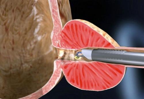Трансуретральная резекция при аденоме предстательной железы