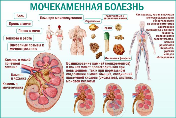 Для пациентов с мочекаменной болезнью