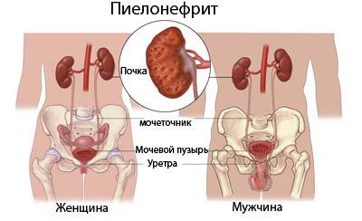 Симптомы пиелонефрита у мужчин и женщин