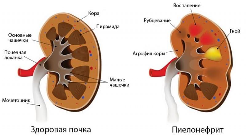 Симптомы хронического пиелонефрита