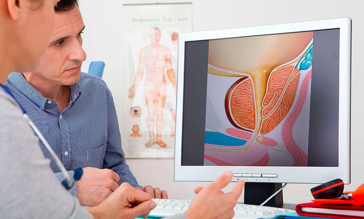 Как врачи лечить простатита какая стадия у хронического простатита