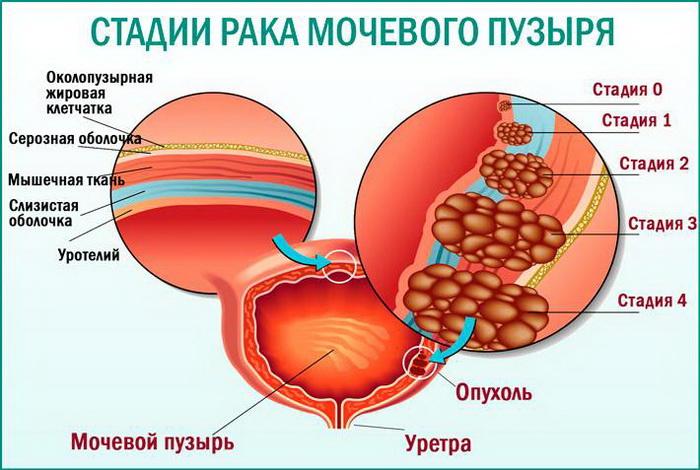 Степень дифференцировки рака