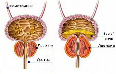 Аденома простаты: диагностика и лечение