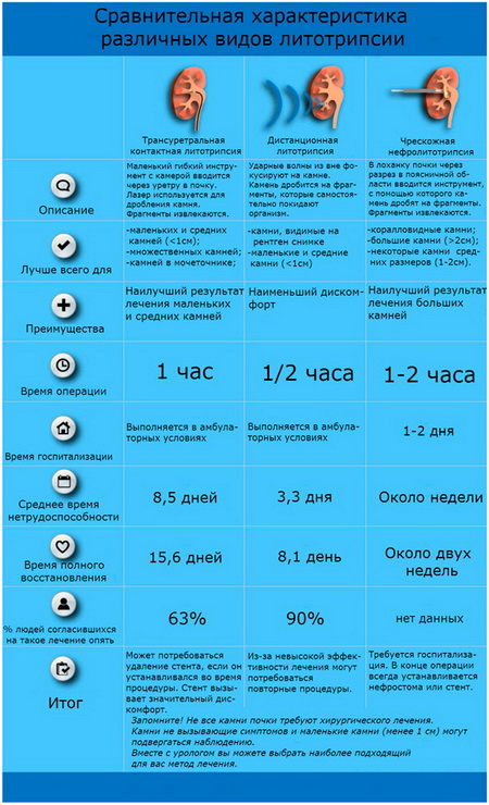 Сравнительная характеристика различных видов лечения камней почек и мочеточников.