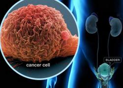 Лечение и удаление опухолей мочевого пузыря