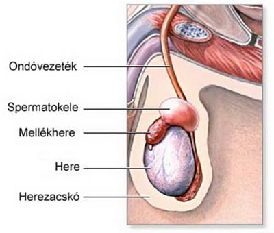 Болит яичко и в сперме сгустки крови