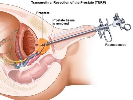 Аденома и рак предстательной железы - диагностика и лечение в ...